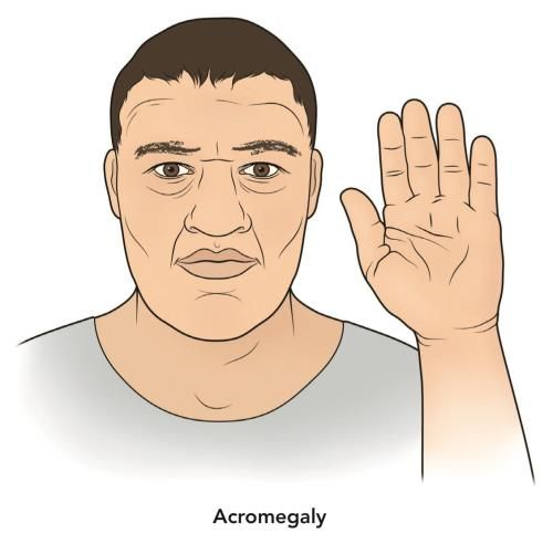 17 Best images about Acromegaly & Gigantism on Pinterest | The ...