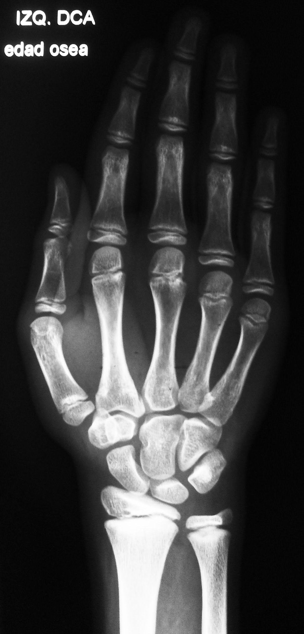 Radiografía de la mano, frente: | 2014 - Mod A - TP 3 | Pinterest ...