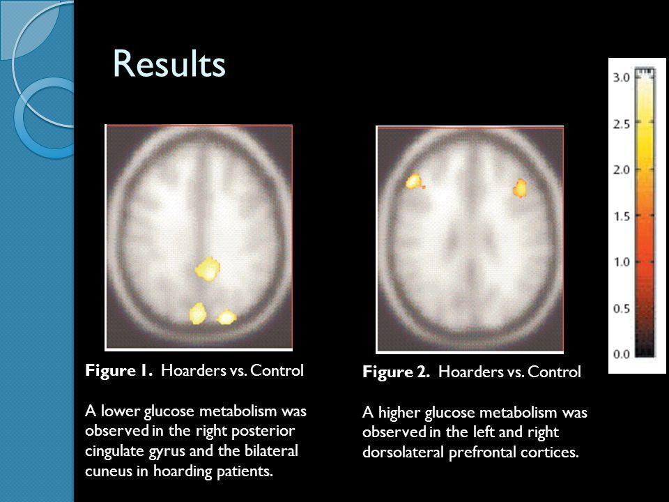Image result for hoarding brain part Hoarding, Digital