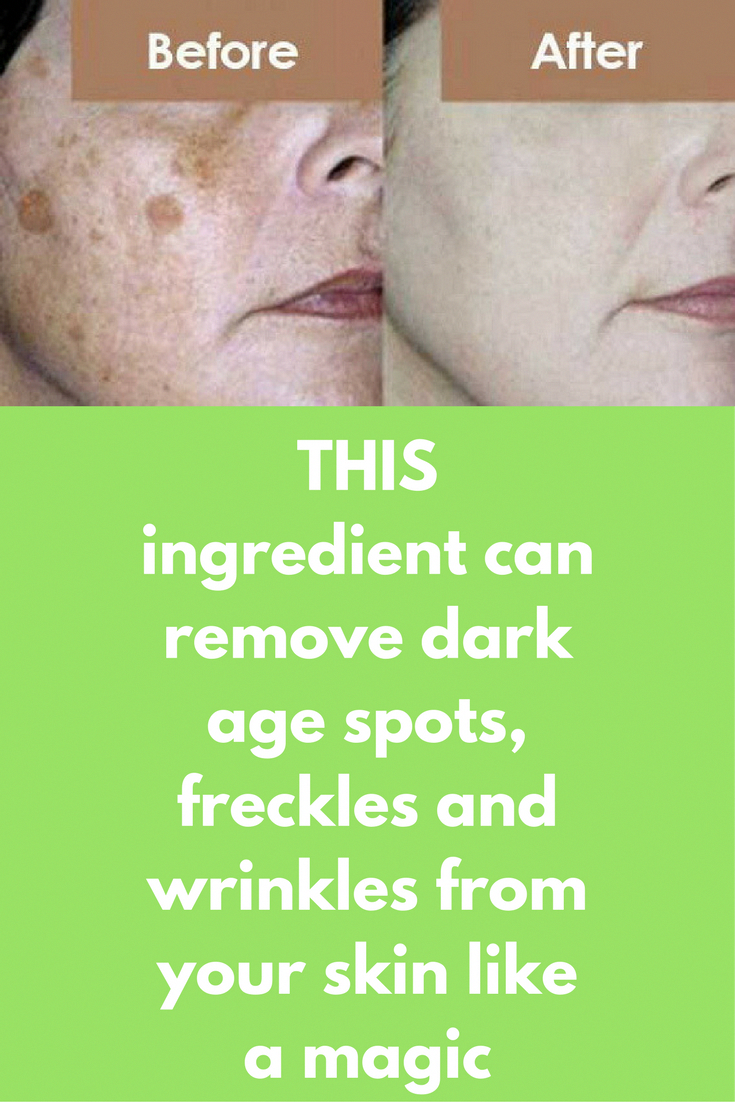 How To Get Rid Of Dark Freckles On Face