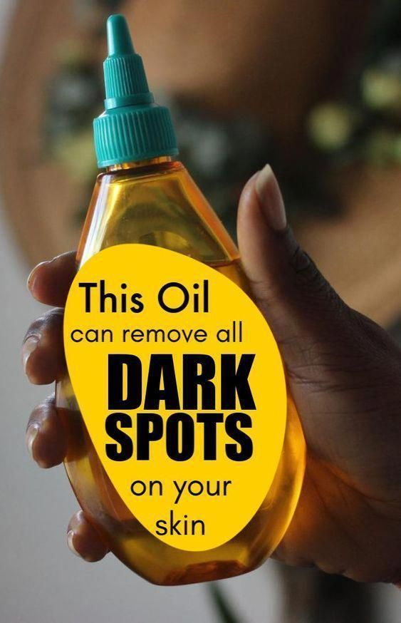 Photo of Remove Dark Spots From Your Face Using Baby Oil