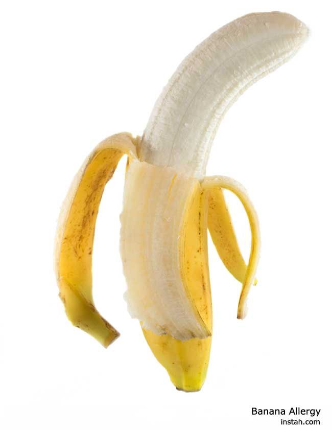 Banana Allergy - Its causes, symptoms and remedies