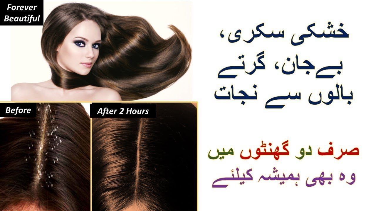Hair Care Tips In Urdu Hindi In This Video You Will Know How To Get Rid Of Dandruff Rough Dry Damaged Hair Hair Tips In Urdu Hair Care Tips Beauty
