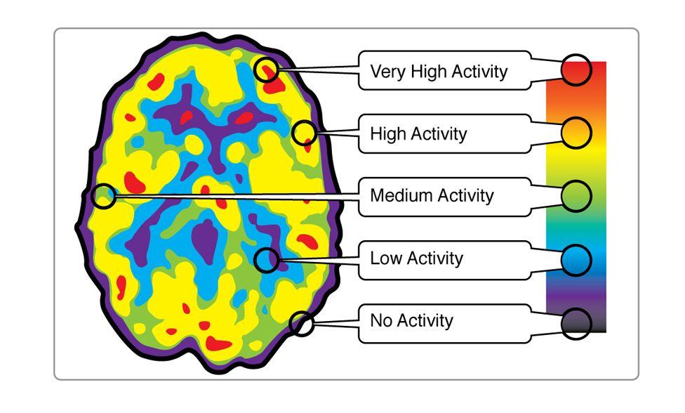 Pet Scan Therapy Brain training games, Brain anatomy