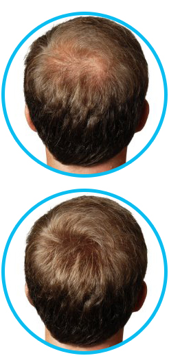 Phytoworx Organic Hair Loss Shampoo Is Designed To Help Hair Loss Sufferers To Re Grow Their Hair And It Works D Organic Hair Hair Loss Shampoo Hair Loss Spray