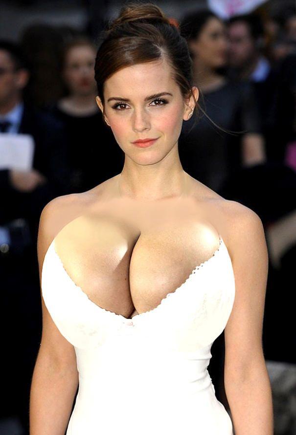 Emma watson shamed for braless photoshoot