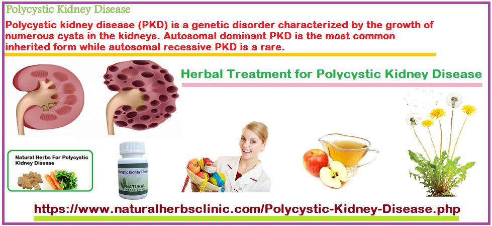 Polycystic Kidney Disease Herbal Treatment
