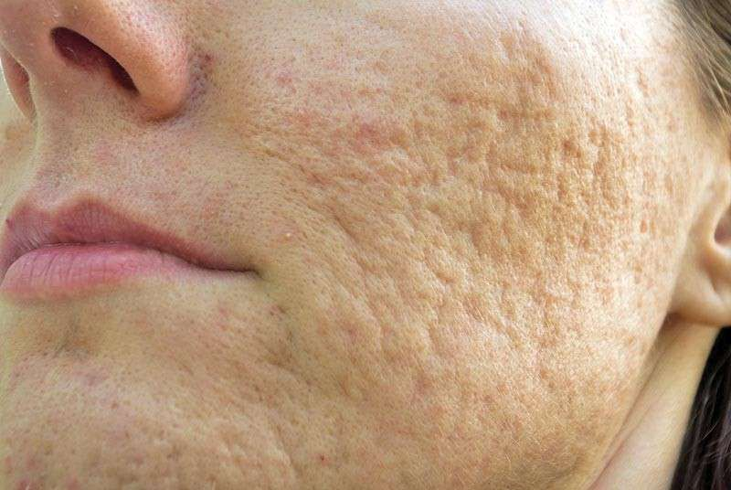 Pin On Get Rid Of Acne Pimple Naturally