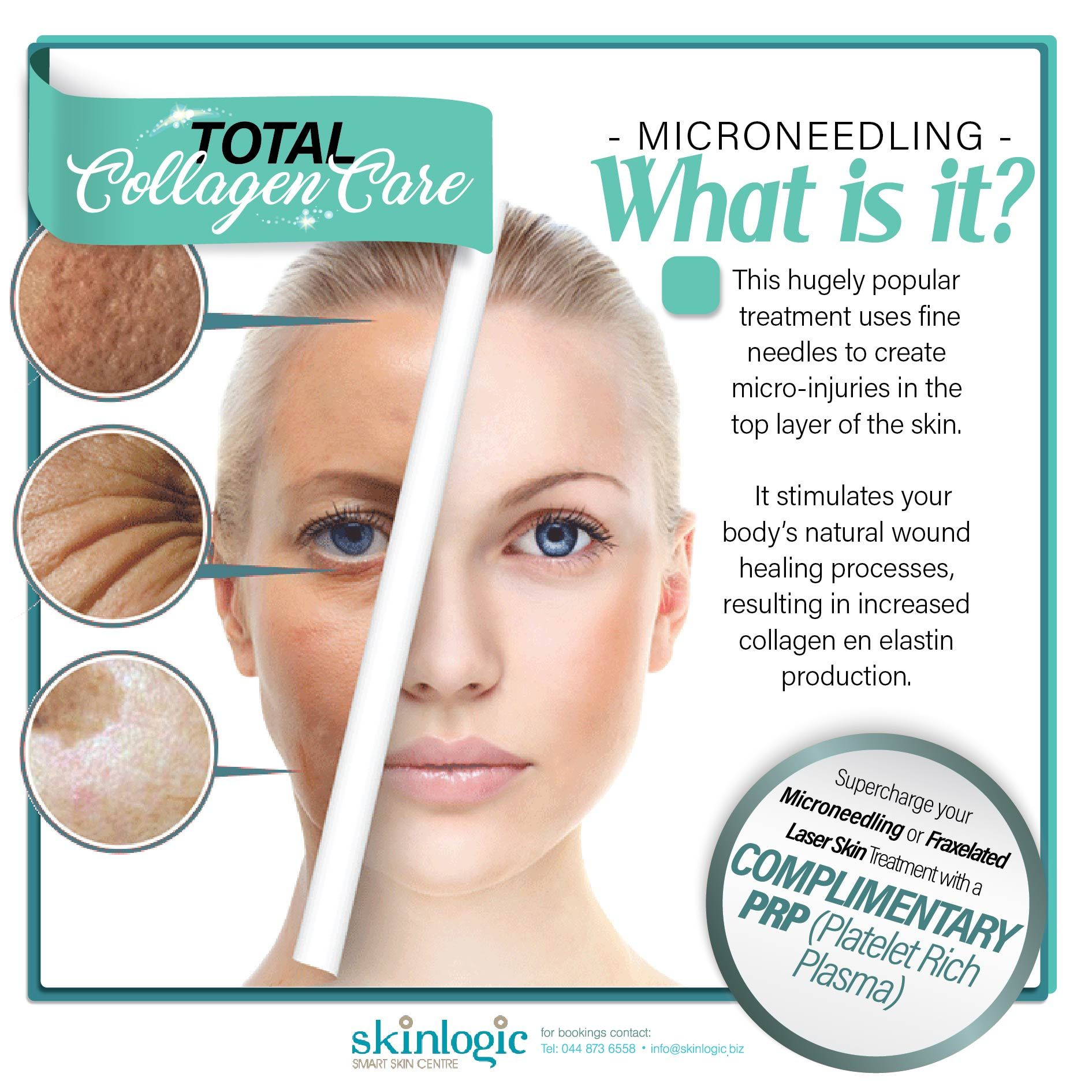 #Microneedling What is it? This hugely popular treatment uses fine needles to create micro-injuries in the top layer of the #skin. It stimulates your body's natural wound healing processes, resulting in increased #collagen en elastin production. #SKinlogic #Aesthetics #SkinTreatments #Aging #Beauty