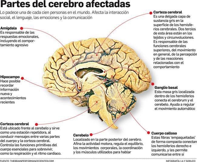 cerebro | Cerebro | Pinterest | Anatomía, Afasia y Neurología