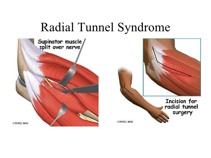 radial tunnel syndrome - Google Search | Arms | Pinterest
