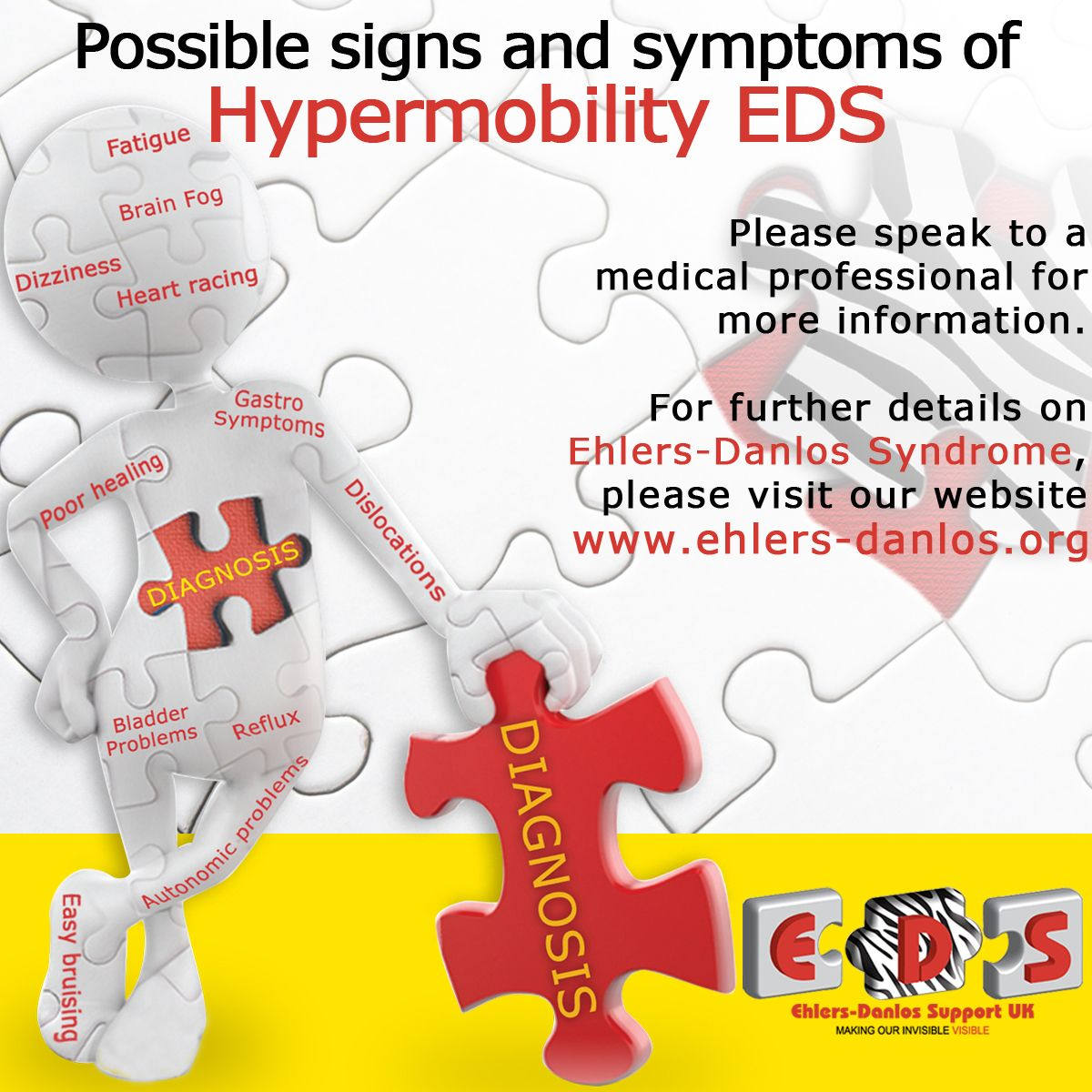 Signs and symptoms of Hypermobility EDS (EDSHT)