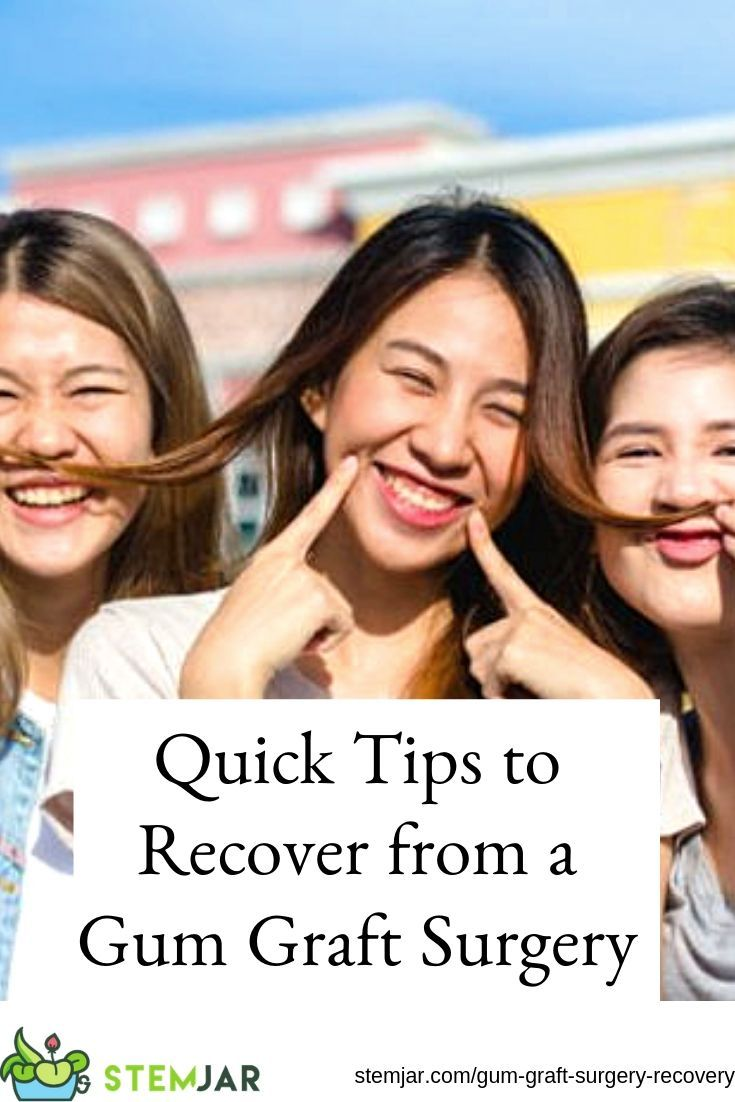 Quick tips to recover from a gum graft surgery gum graft