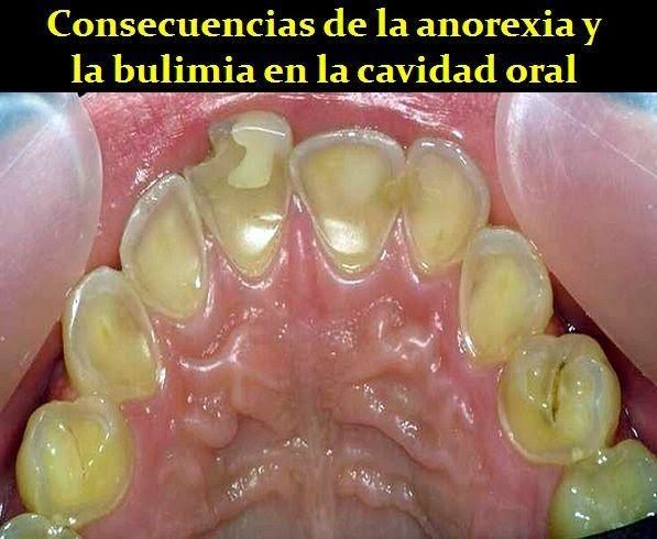Consecuencias de la anorexia y la bulimia en la cavidad oral ...
