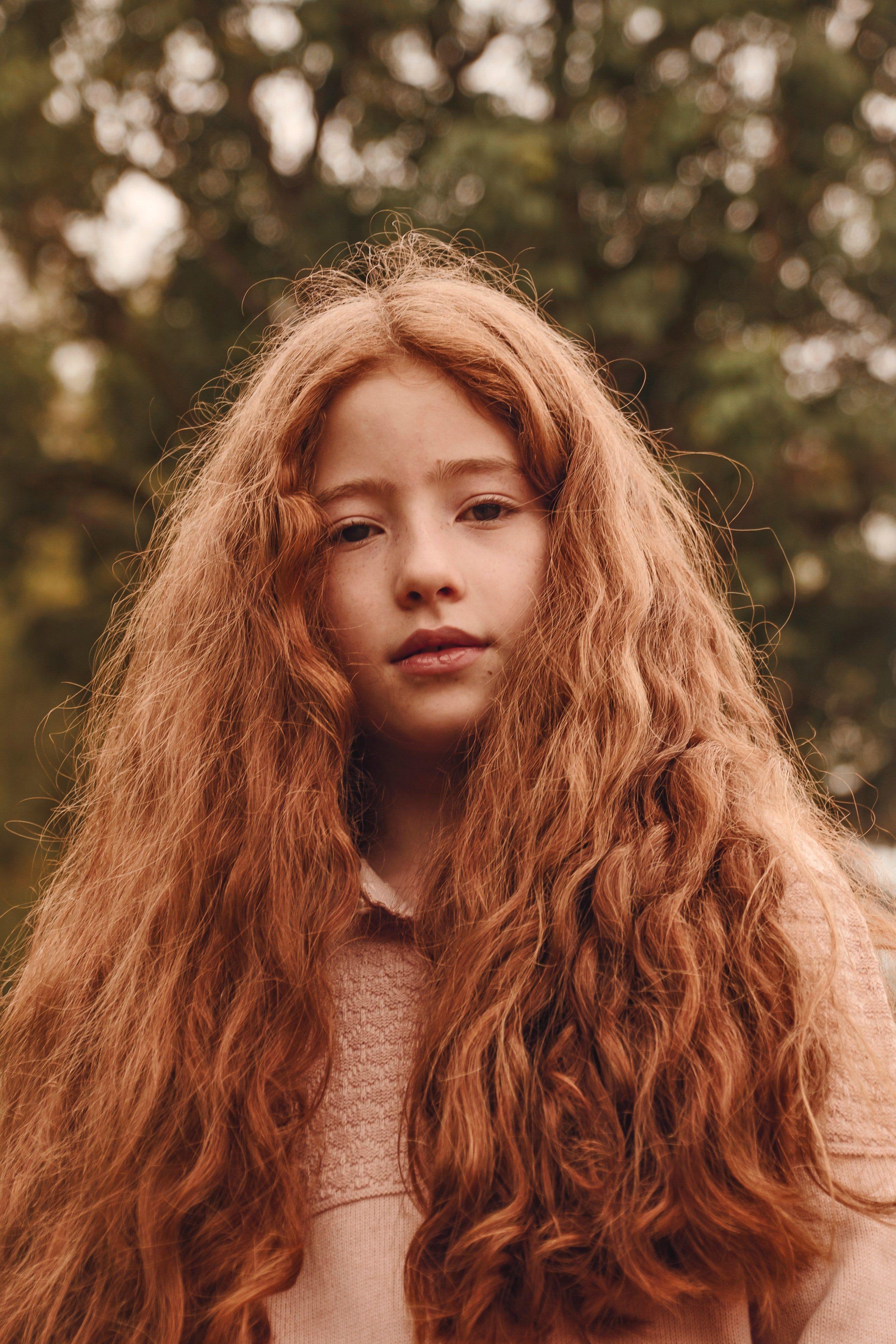 character inspiration Hair, Hair styles, Acne treatment