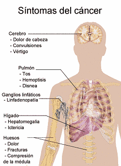 sintomas cancer intestinal en ninos