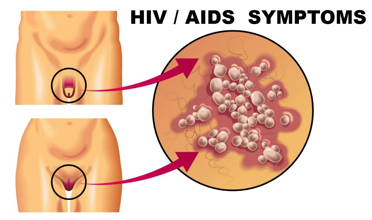 hiv symptoms (hiv, aids) - all about health - | health and, Human Body