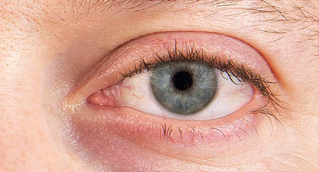 Slideshow Dry Eyes and What You Can Do About Them