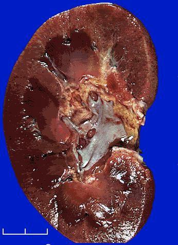 Pin On Disease Illness Syndromes