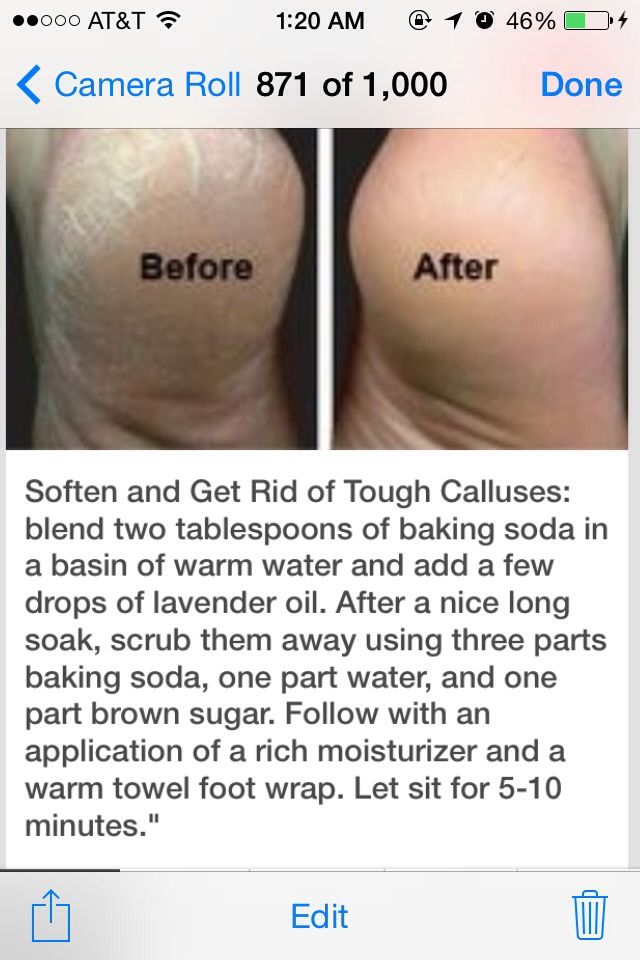 how to get rid of calluses