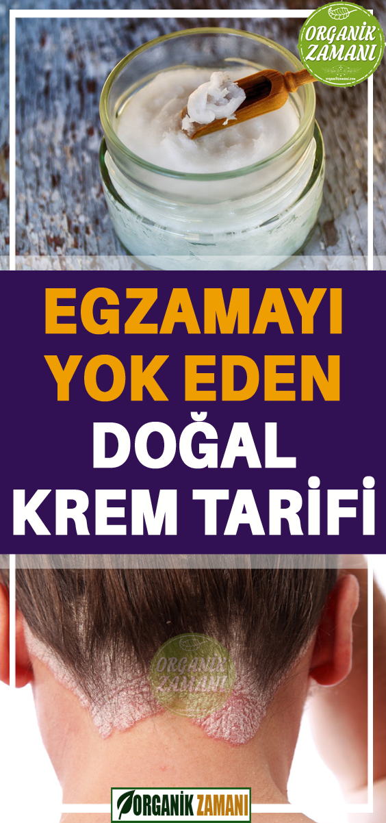 Dogal Egzama Kremini Evde Yapmak Ister Misiniz Dogal Saglik