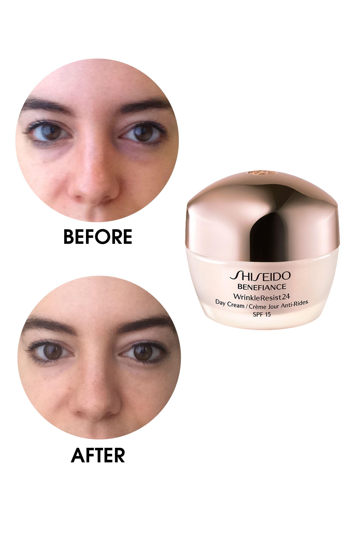 Under Eye Treatments That Really Work Eye Bags Treatment Undereye Eye Treatments