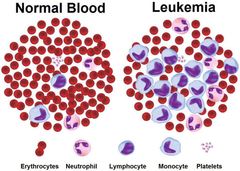 Image result for acute leukemia causes, symptoms & treatment