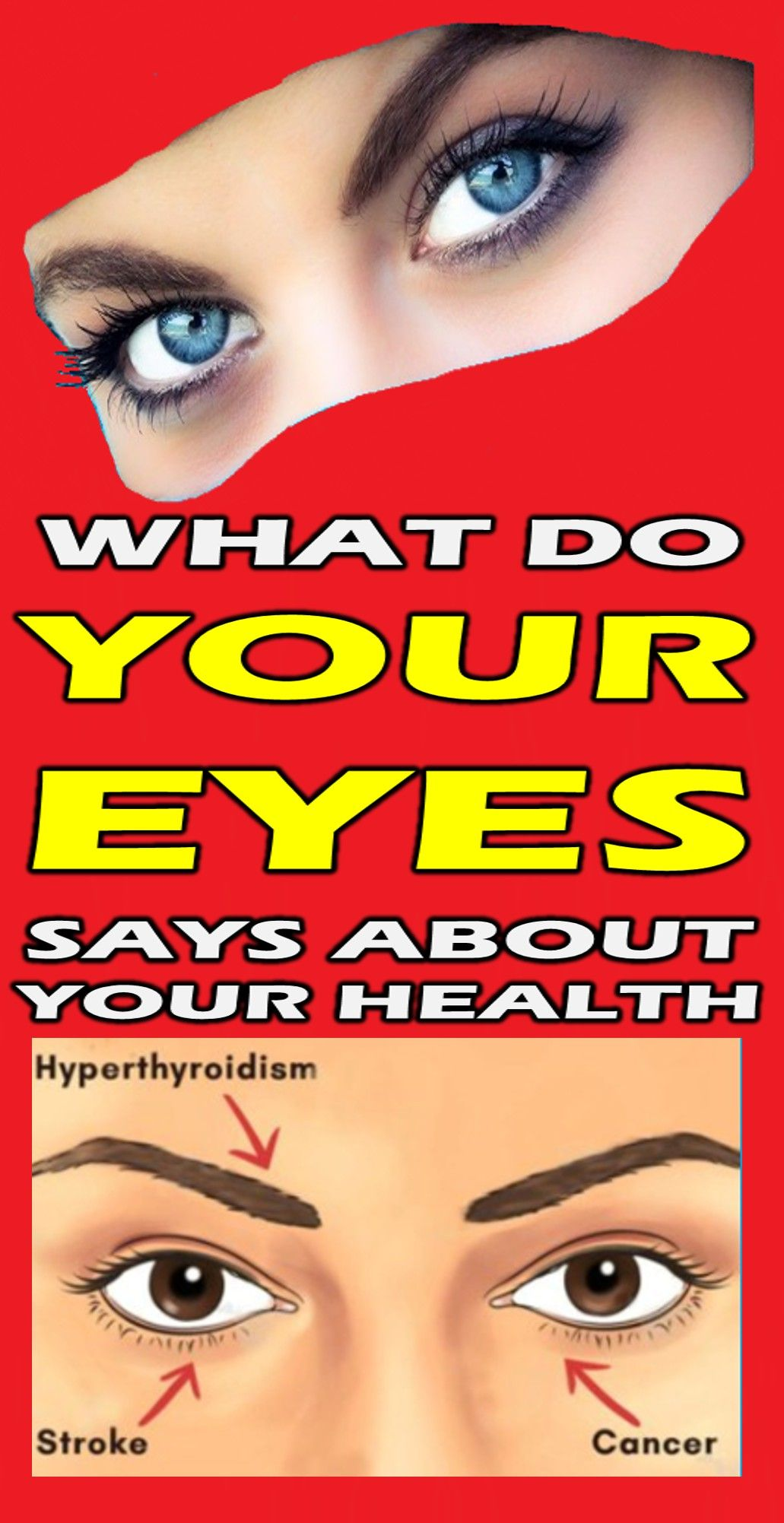 photo Your Eyes Are Windows to Your Stroke Risk