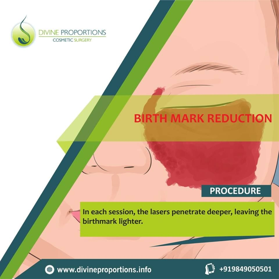 small resolution of even when a large birthmark requires tissue expansion and transplantation skin heals quickly most children recover fully wit