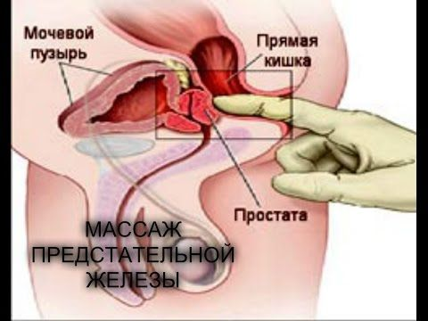 Мужские массажеры простаты отчего появляются синяки на теле без ударов на руках и ногах