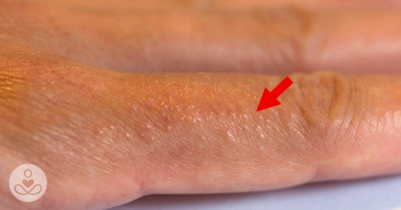 ecc8e2b5bffcc847e18f8643a465b059 - How To Get Rid Of Small Itchy Bumps On Hands