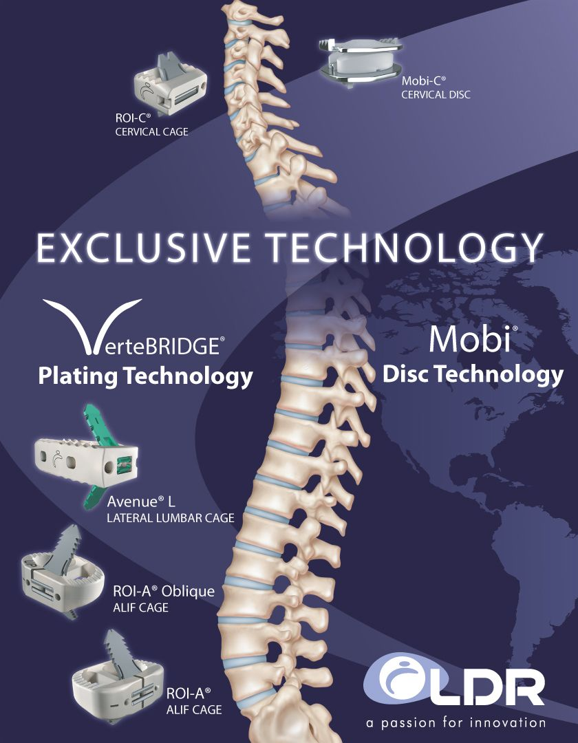 Surgical Spine Medical Device Company LDR Holding Corp IPO