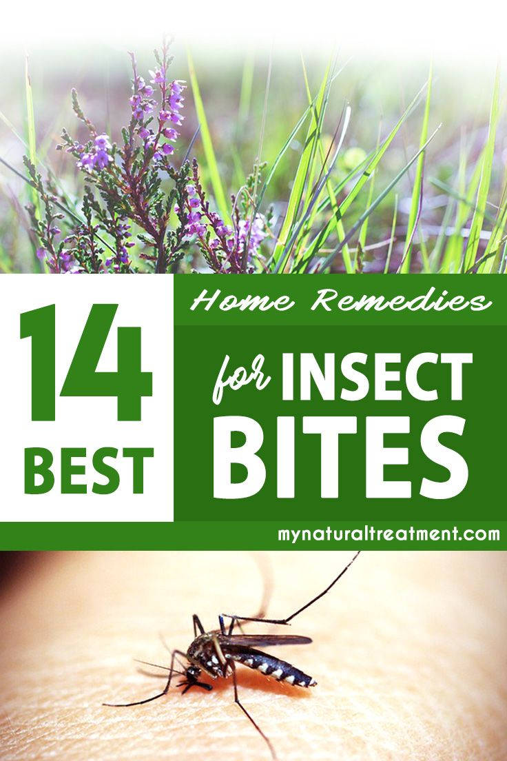 14 best home remedies for insect bites natural insect