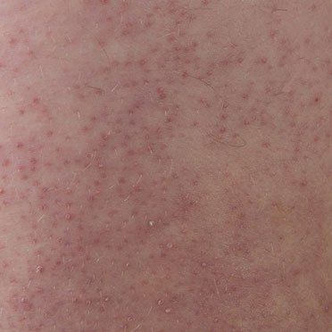 What Is Keratosis Pilaris Bumpy Skin And Small Red Dots On Back