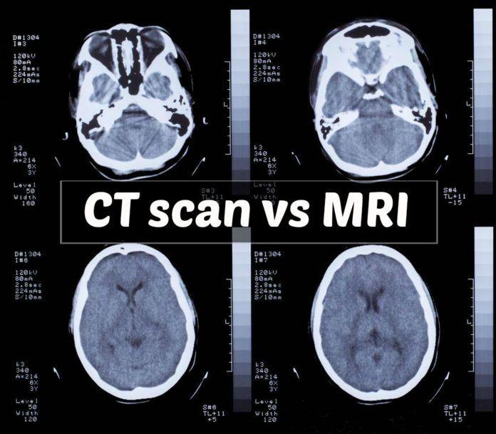 Httpcareyourpuppyct scan vs mri all posts pinterest httpcareyourpuppyct scan vs mri ccuart Images