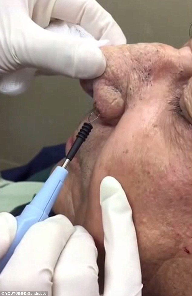Dermatologist known as 'Dr Pimple Popper' has become a