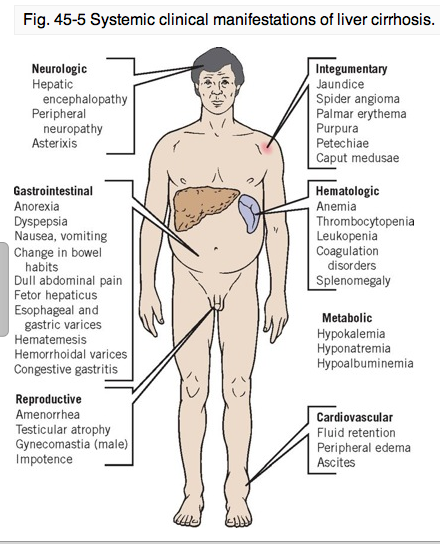 symptoms of acidosis: cns depression | nursing: homeostasis, Human Body