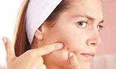 <p>A acne pode aparecer por diferentes causas e em diferentes zonas do corpo. Esta condição de pele não provoca danos à saúde, mas pode afectar a auto-estima, pois aparece como colisões cheias de pus sobre a pele e quando desaparecem, deixam cicatrizes bastante visíveis. As cicatrizes da acne podem ser …</p>
