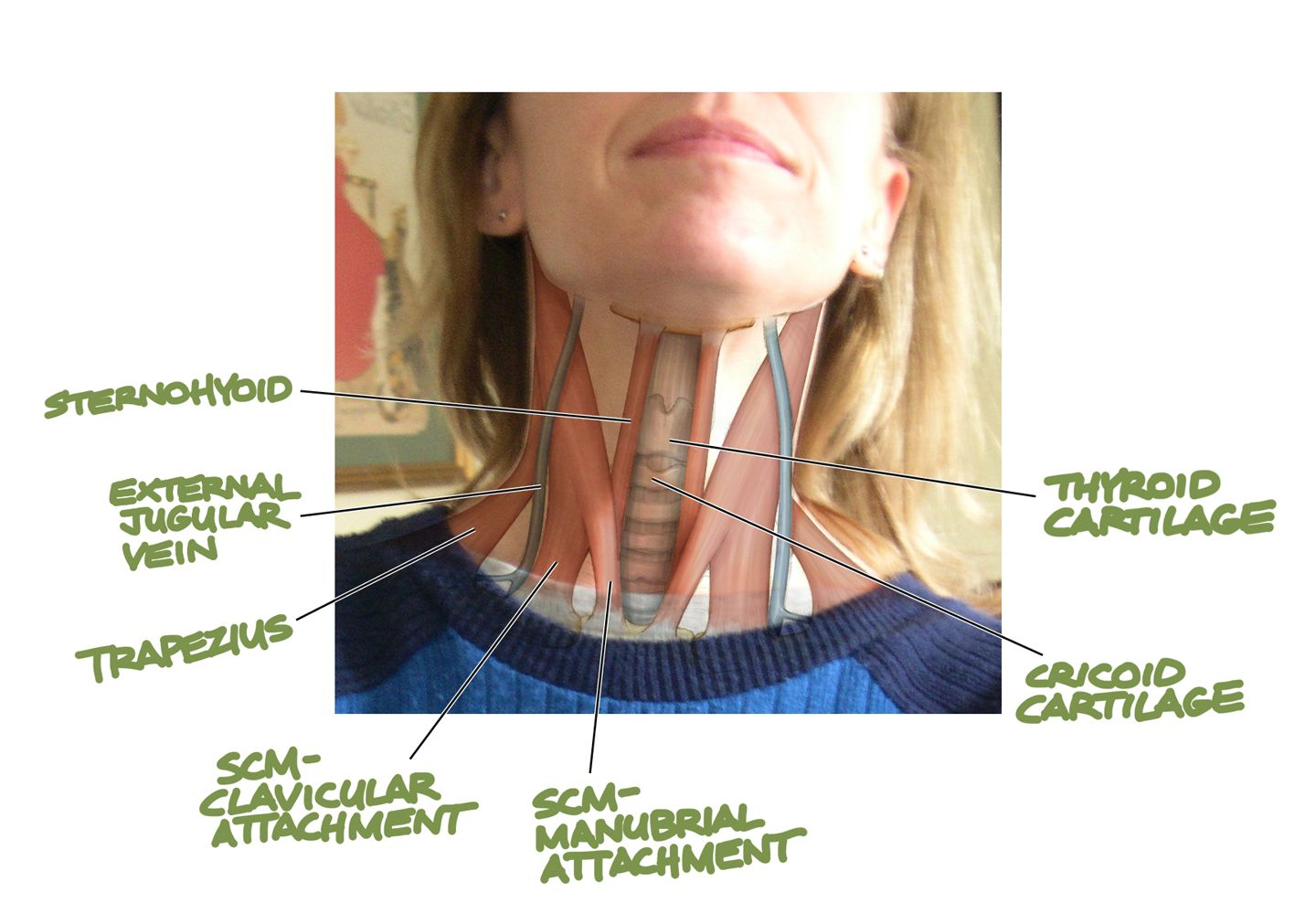 throat muscles | Just below the thyroid cartilage, there is another ...