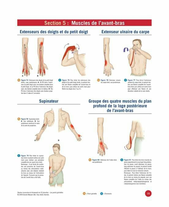 homeopathie douleur musculaire bras