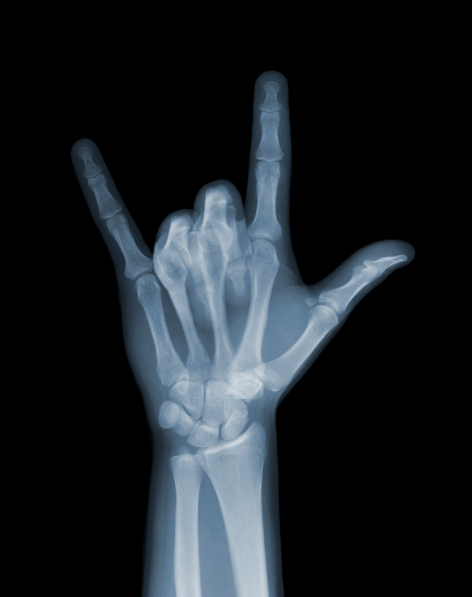 X-ray of Kylie\'s knickers and other works by Nick Veasey | Pinterest ...