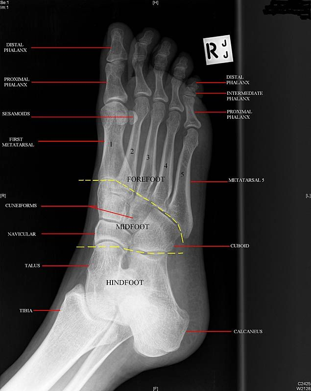 Anatomy Musculoskeletal X Ray Google Search X Rays Pinterest