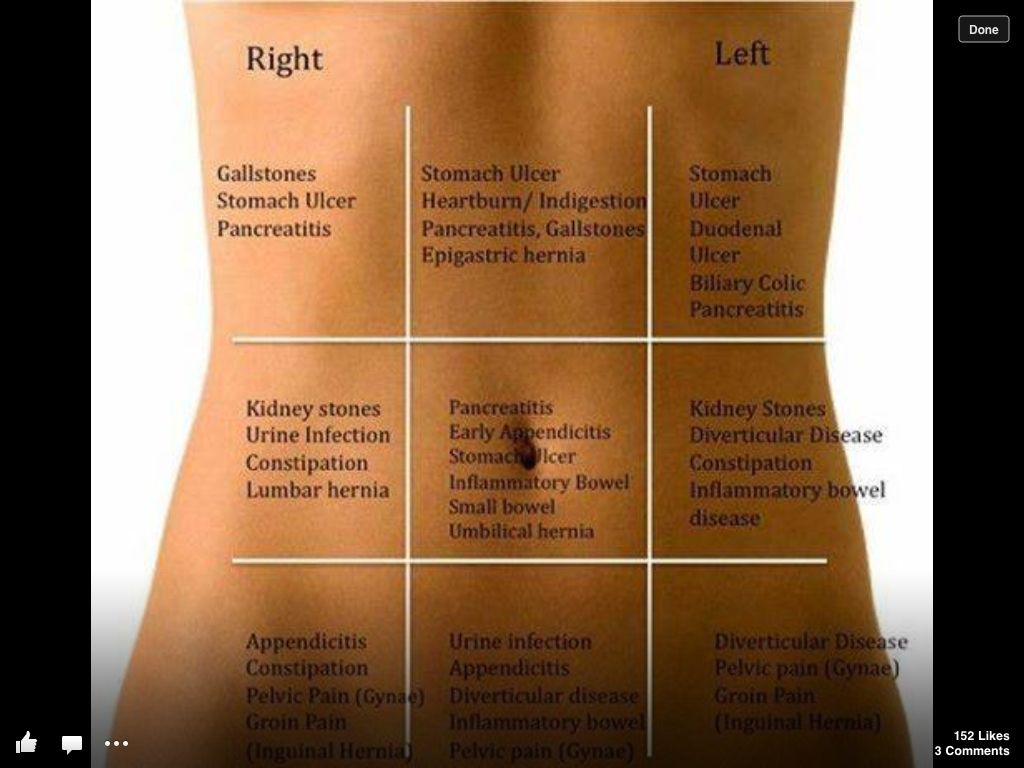 stomach pain quick guide the common areas of pain and what areas they affect in the stomach awesome diagram  [ 1024 x 768 Pixel ]