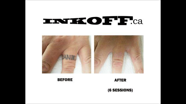 Ink Off Laser Tattoo Removal Vancouver Bc Canada Inkoff Laser