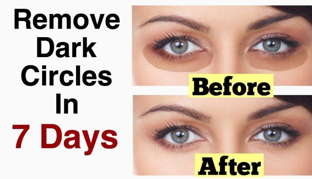 Remove Dark Circles & Under Eye Bags & Baking Soda & Lemon ...