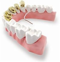 3m Unitek Launches Incognito Lite May 2012 If You Ve Always Wanted To Improve Your Smile Now Is The Time The Orthodontics Braces Smile Incognito Braces