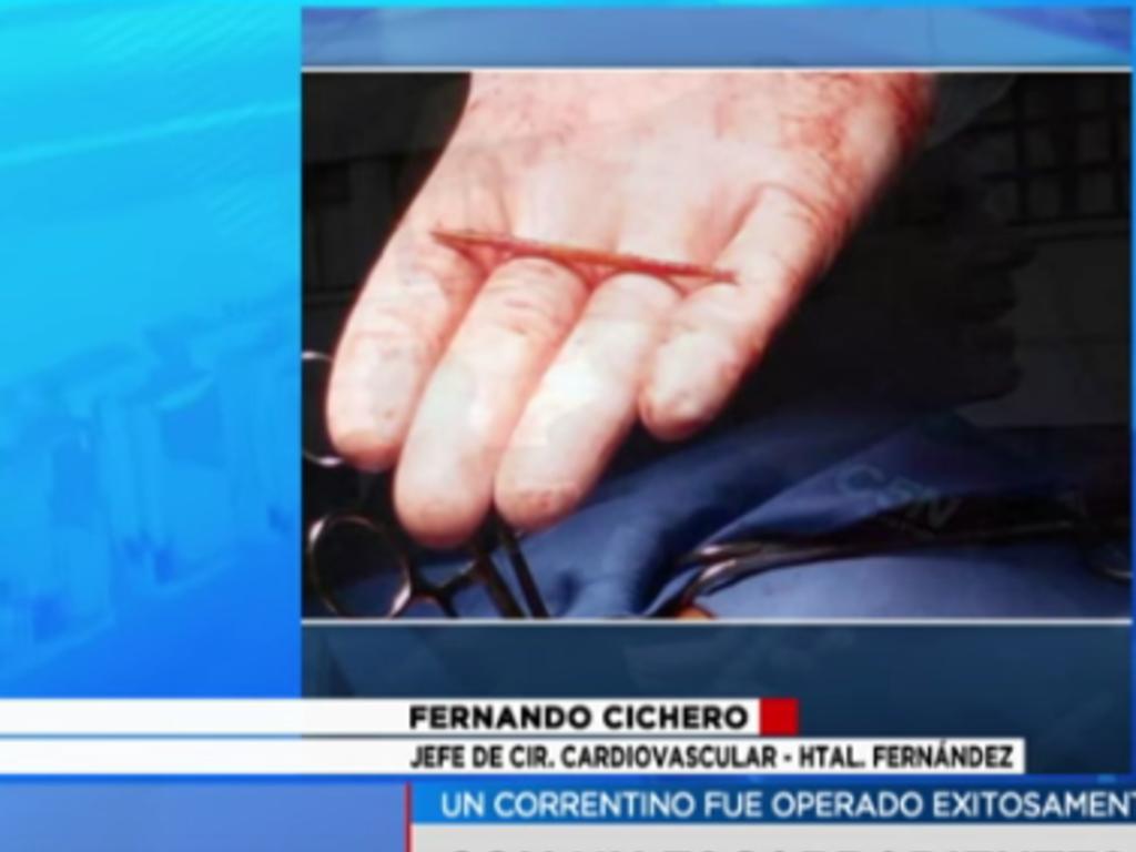 Un argentin a vécu près de deux ans avec un cure-dent coincé dans lecœur !