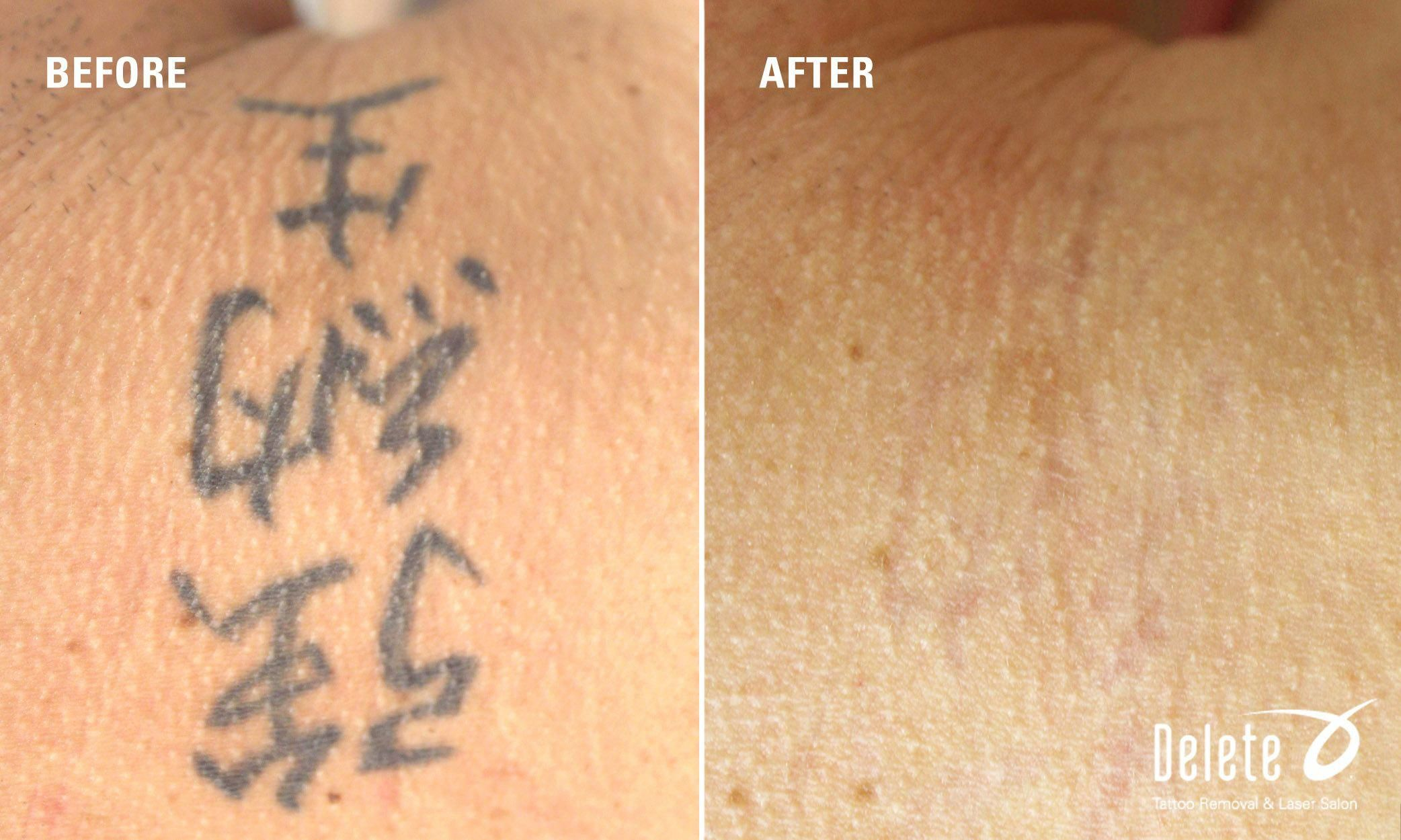 For This Week S Before And After Picoway Tattoo Removal Here Is What We Consider An Easy Removal This All Black I Tattoo Removal Tattoos Tattoo Removal Cream