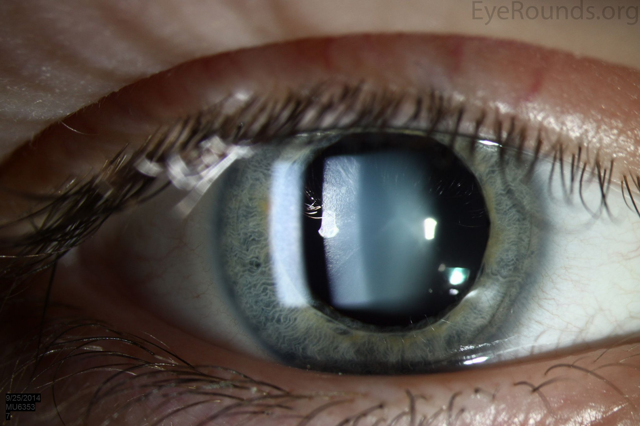 364d4af1299b Pin by Atwal Eye Care on Eye Care in Buffalo