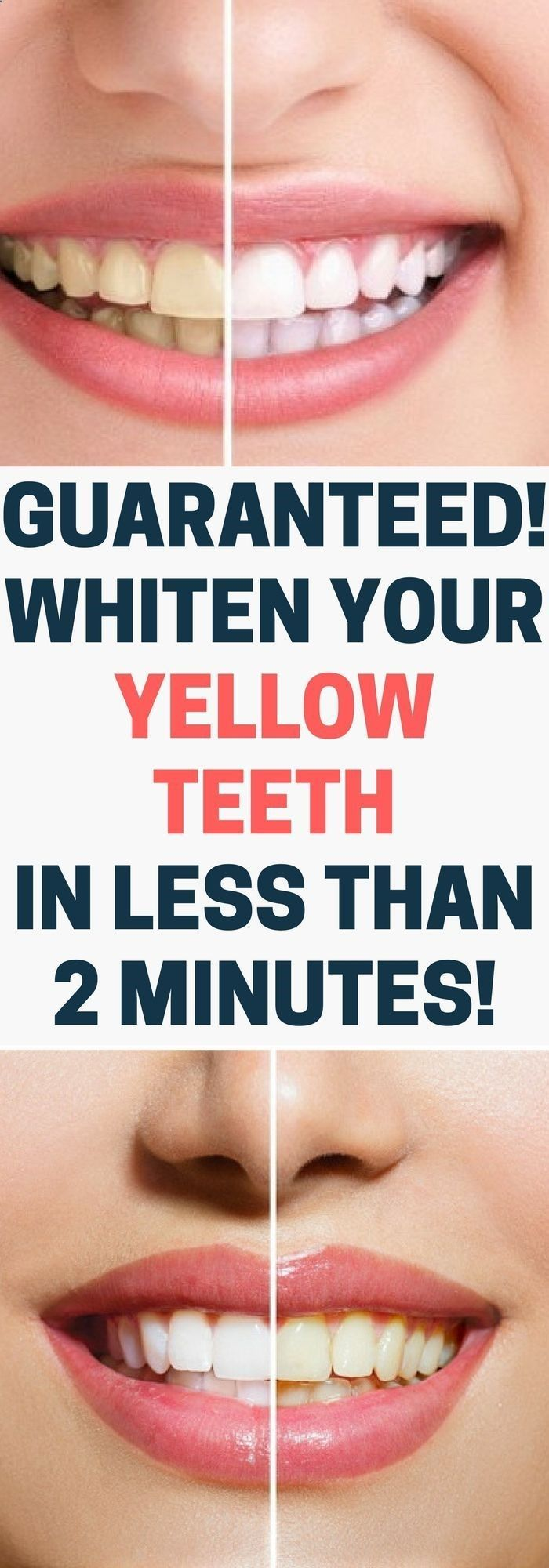GUARANTEED! WHITEN YOUR YELLOW TEETH IN LESS THAN 2 MINUTES.!!! #CoconutOilSkin #howtowhitenyourteeth
